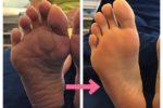足底腱膜炎、足底筋膜炎、外反母趾、内反小趾、踵の痛み